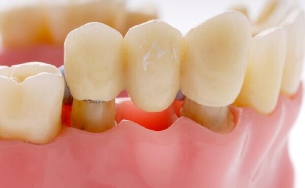 протез виниры для зубов цена