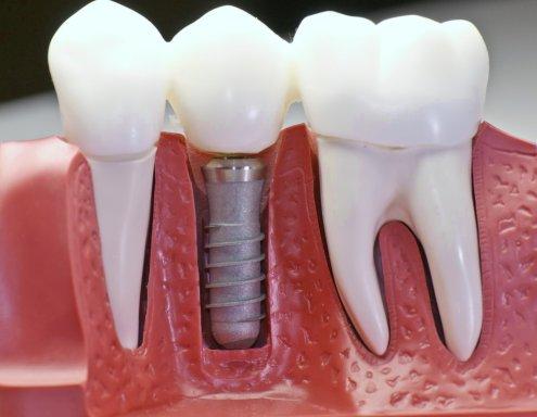 Какие имплантаты зубов бывают?