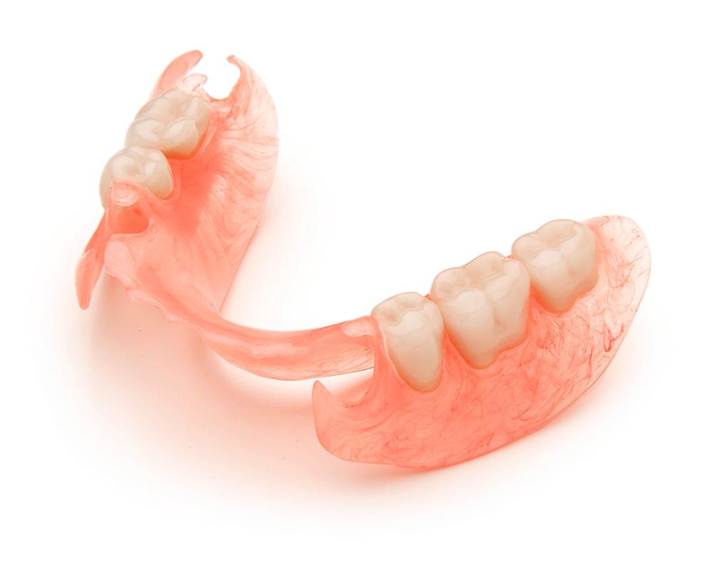 Зубные протезы на крючках: плюсы и минусы кламмеров 61
