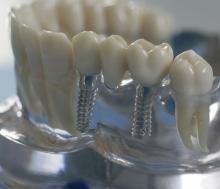 <em>Редактировать Услуга</em> Имплантация зубов. Стоматология в Саратове
