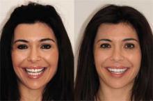 Стоматологическое лечение вместо пластической хирургии