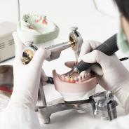 Этапы изготовления съемных зубных протезов