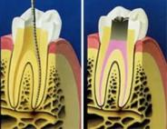 Каналы зуба. Как их лечат?