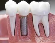 Вставить зубы в Саратове: доступная цена и высокое качество