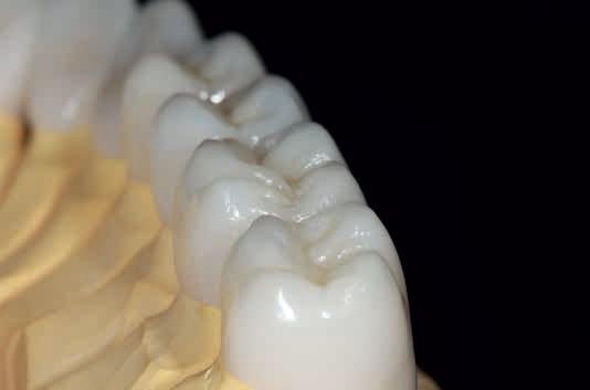 Керамические коронки на основе дисиликата лития (стеклокерамика)