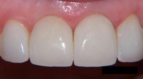 Протезирование зубов металлокерамикой: фото до и после