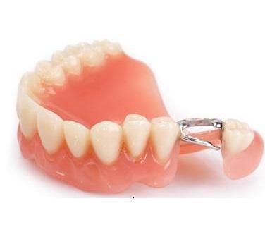 Что такое зубные протезы?