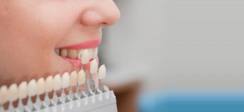 Виды протезирования зубов: плюсы и минусы