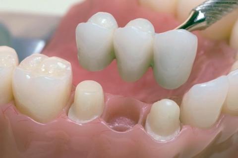 Мостовидные несъемные зубные протезы