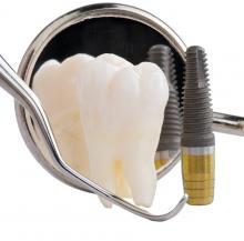 <em>Редактировать Услуга</em> Одномоментная имплантация зубов. Стоматология Фларт