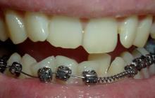 Как не пропустить кариес зубов при лечении брекетами