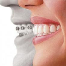 <em>Редактировать Услуга</em> Ортодонтия. Стоматология Фларт