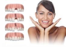 Что такое имплантация зубов?