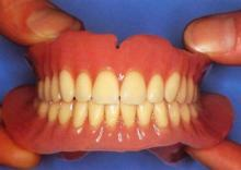 Какие протезы лучше при полном отсутствии зубов